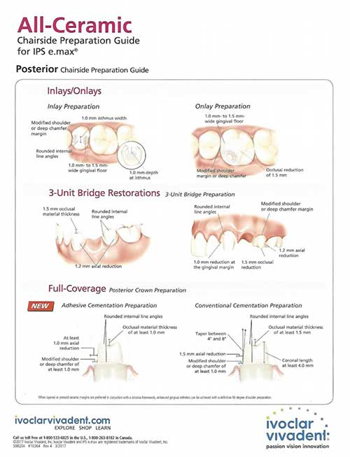 IPS e.Max Preparation Guide Download at Global Dental Solutions