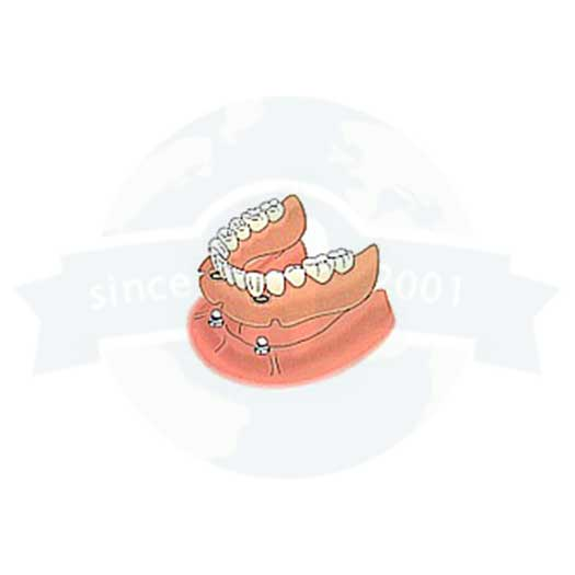 Two Custom Root Caps at Global Dental Solutions