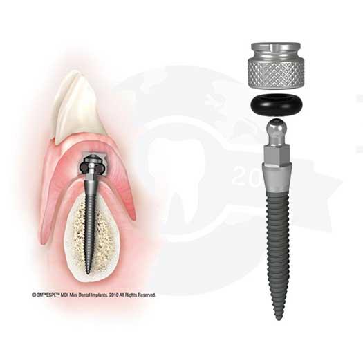 Removable Cases Partial Dentures Atlanta Ga