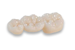 Ceramic Restorations by Global Dental Solutions